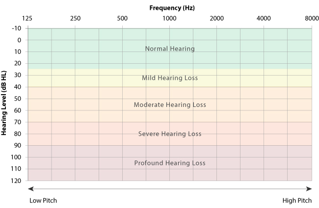 Hearing Test Audiogram
